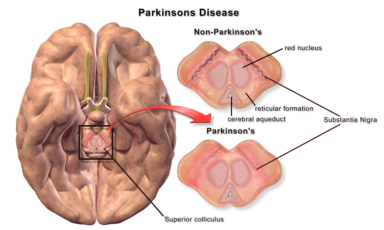 VA Disability for Parkinson's Disease
