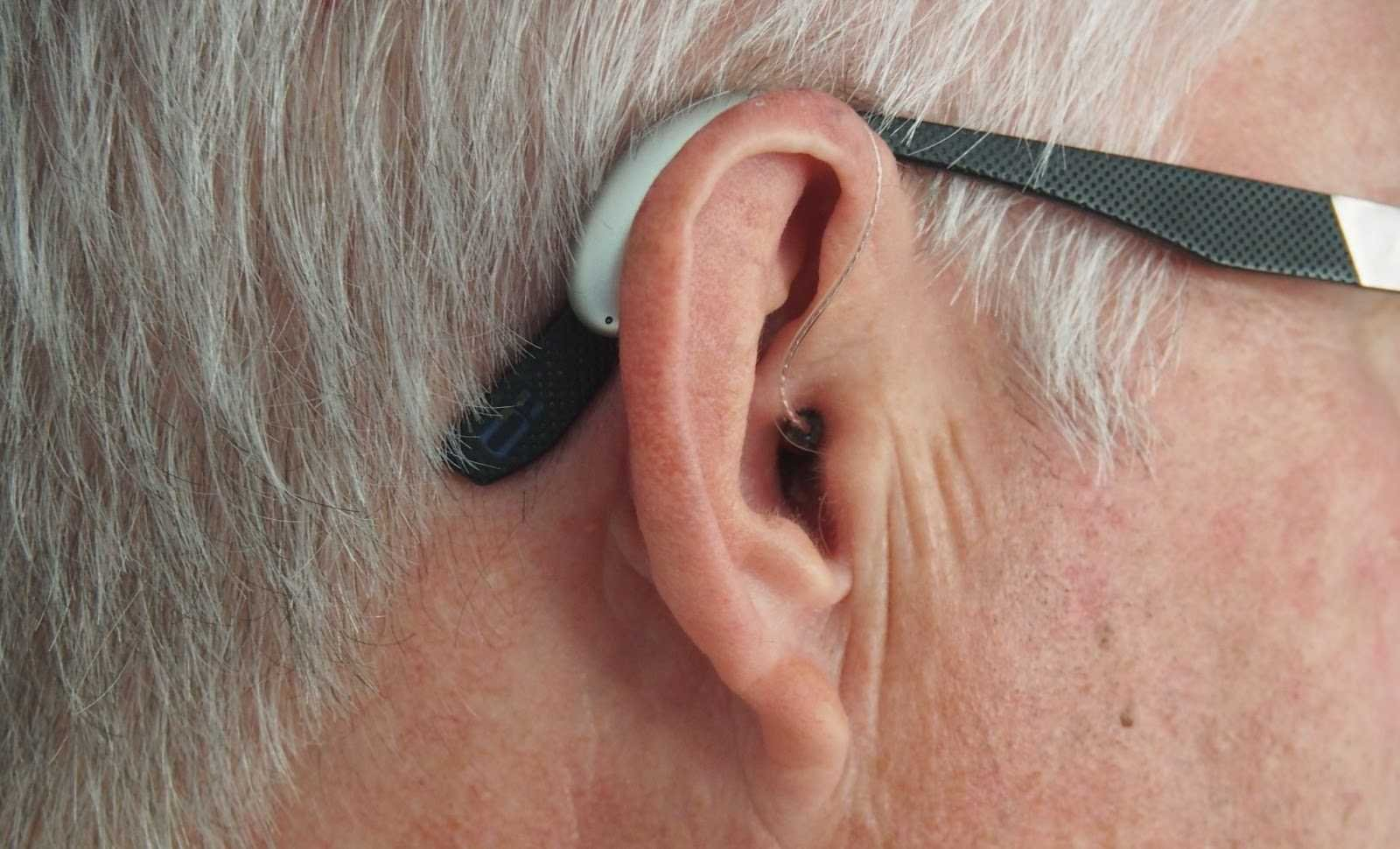 VA Disability for Hearing Loss: Ratings and Compensation