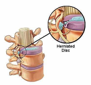Herniated Disc VA Disability