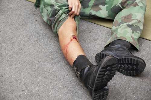 Gunshot Wounds